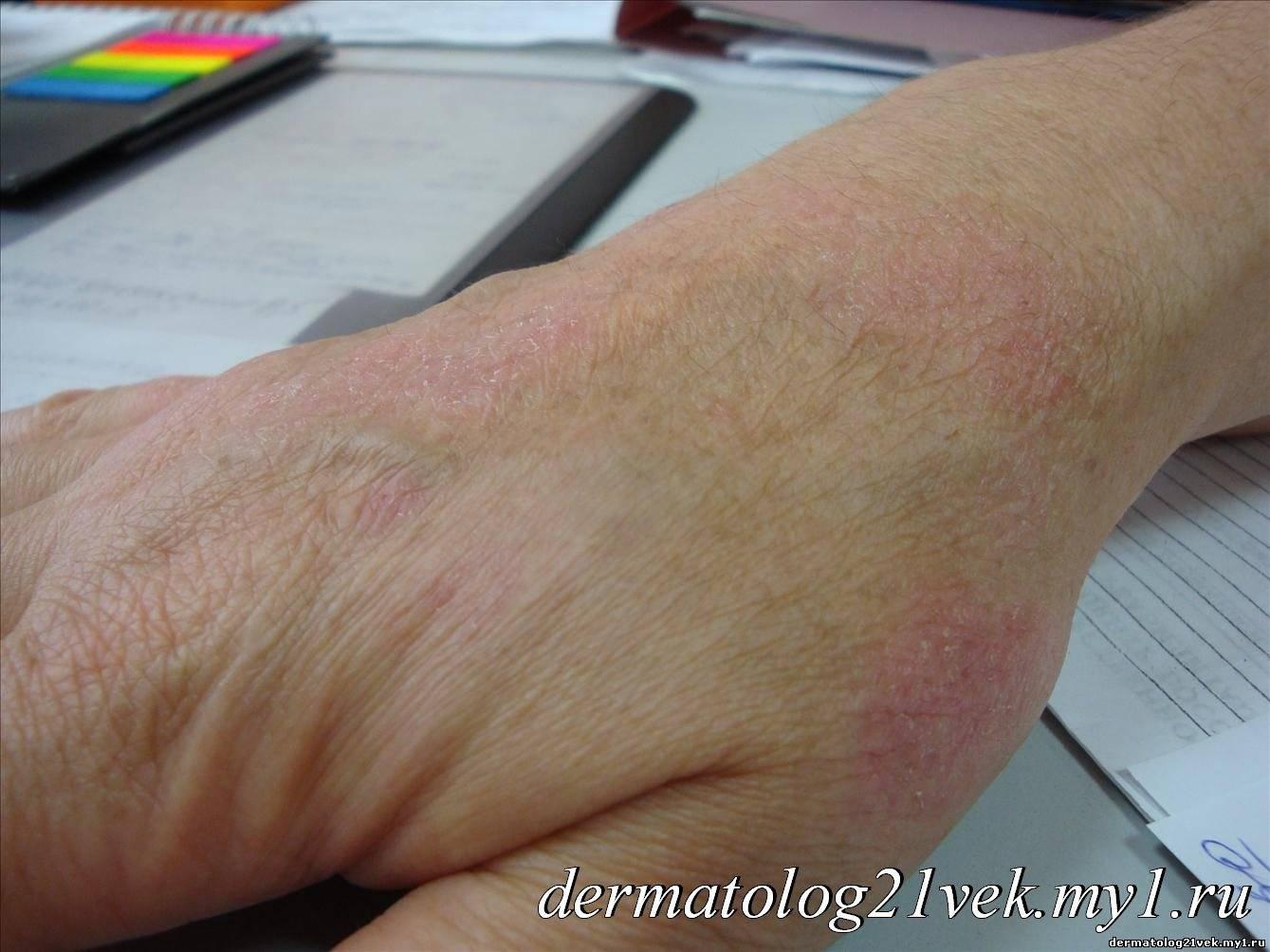 Сухость кожи как лечить рук в руки