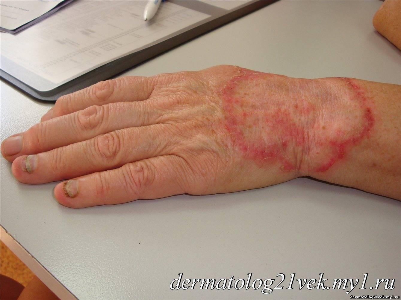 """,""dermatolog21vek.my1.ru"