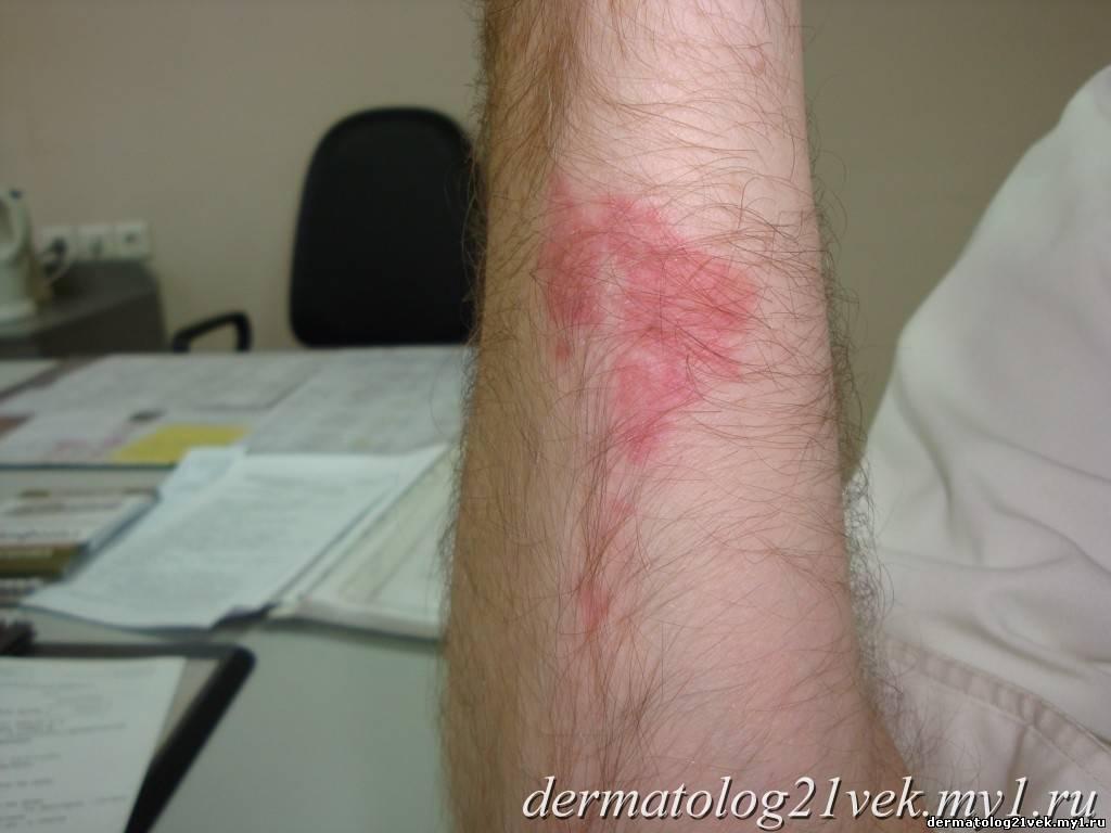 При дерматоскопии - при надавливании...  Спустя 3 дня пятна в области...